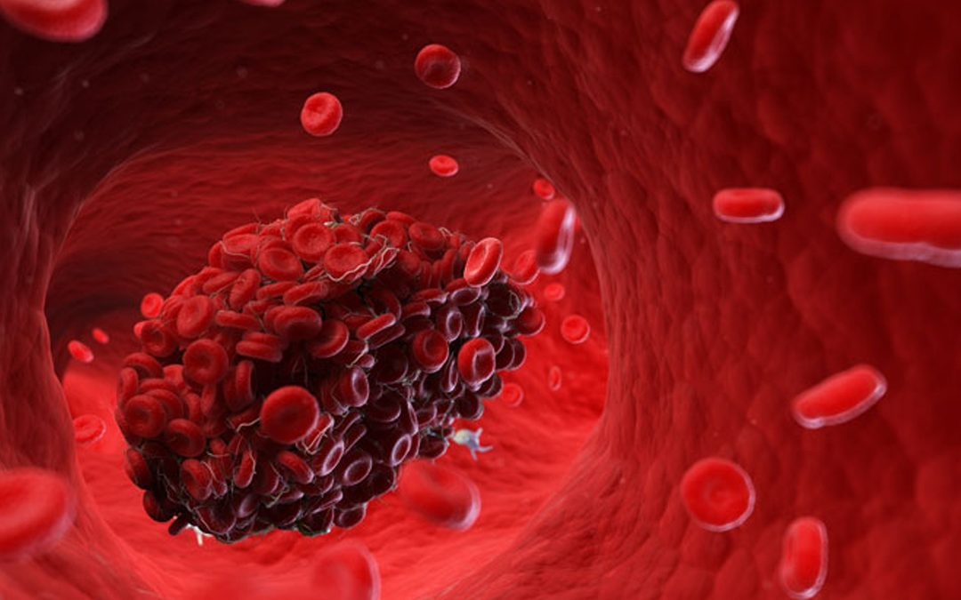 CBD Oil for High Cholesterol and High Blood Pressure